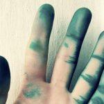 Чем и как отмыть зеленку с кожи