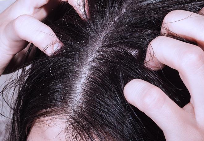 Почему плохо пахнет кожа головы